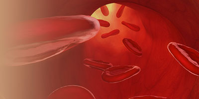 Nursing Management of Venous Thromboembolism in Ambulatory Patients With Cancer