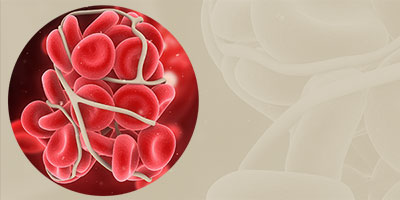 Nursing Management of Venous Thromboembolism in Hospitalized Patients With Cancer